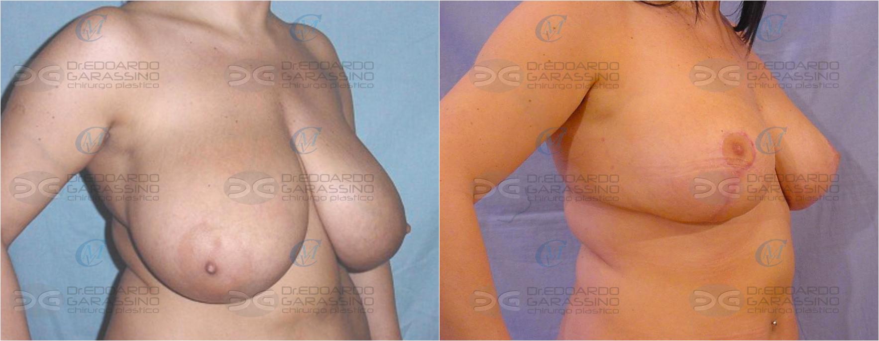 mastoriduttiva-before-after+filigrana